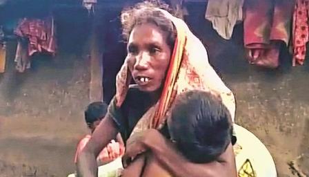 भूख से बच्चों का मरना मानवता पर दाग
